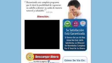 Photo of Milagro Para El Cabello – 90% De Comisión!